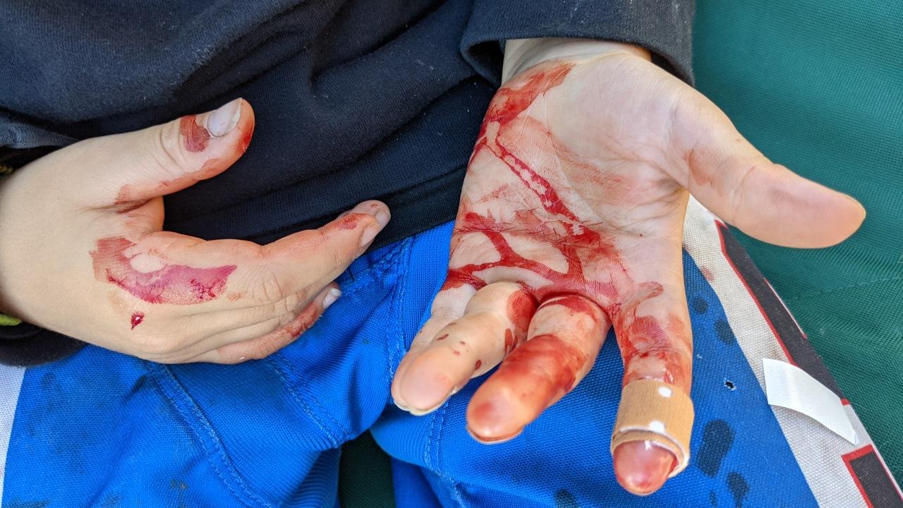 Blutende Hand von Sam, Schnittwunde mit einem Pflaster versorgt